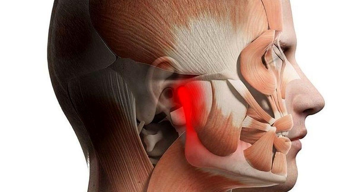 هشدار؛ این دردها در ناحیه صورت را جدی بگیرید