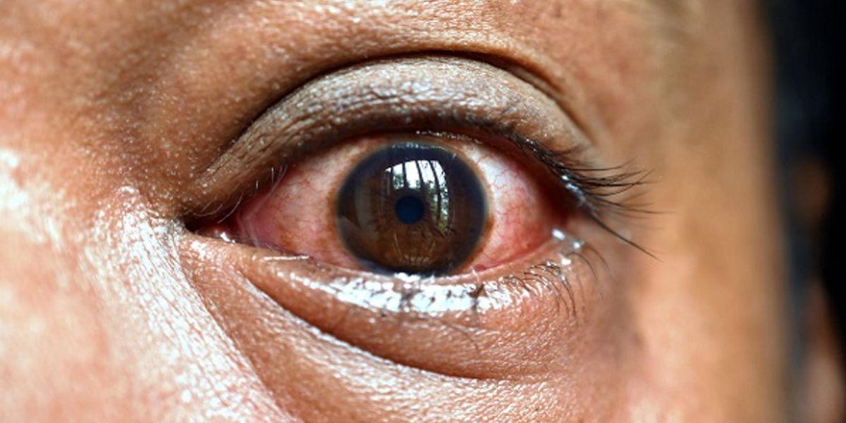 عارضه خطرناک فاویپیراویر؛ قارچ سیاه این افراد را درگیر میکند